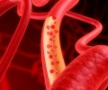 Probióticos y riesgo cardiovascular