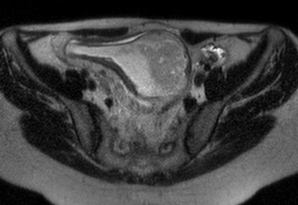 Caso cínico reservoritis crónica