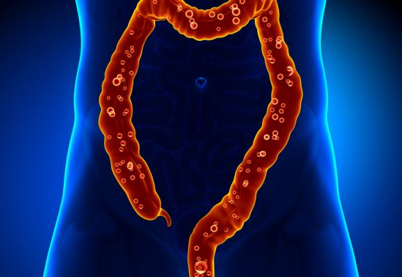 Empleo de probióticos en la colitis microscópica