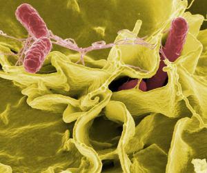 Aproximación de los clínicos a la ecología bacteriana